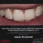 Naoki Aiba - fotografia stomatologiczna